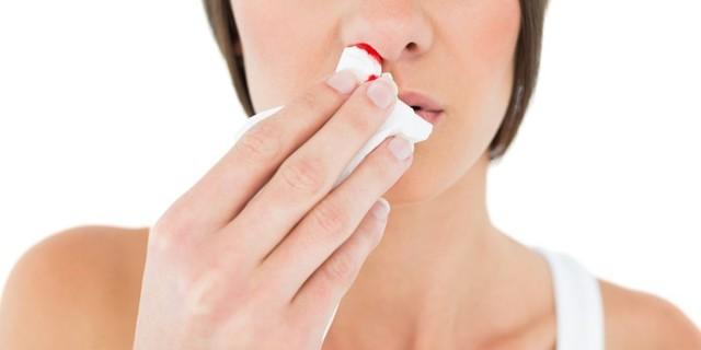 Почему возникает носовое кровотечение и что делать: первая помощь при носовых кровотечениях