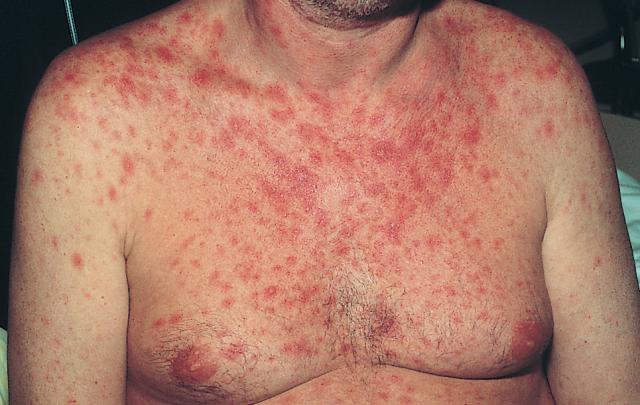 Первые симптомы ВИЧ: как определить заражение вирусом