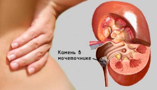 Уретерит, воспаление мочеточника: что это у женщин, у детей, у мужчин, симптомы, лечение