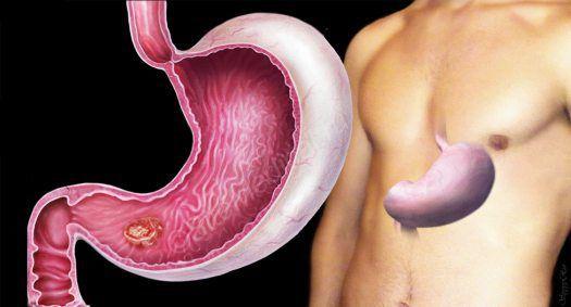 Доброкачественные опухоли желудка: симптомы, лечение, осложнения, риски рака