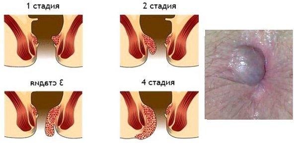 Боли в кишечнике: причине, лечение, к какому врачу обращаться при боли в кишечнике