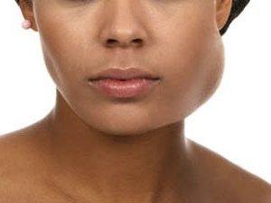 Флегмона — симптомы флегмоны шеи, лица, кисти, ноги, лечение и операция