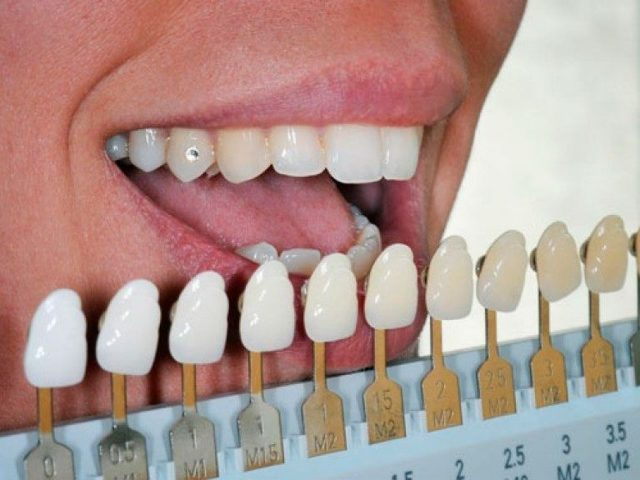 Лазерное отбеливание зубов: плюсы и минусы, отличия лазерного и фотоотбеливания.