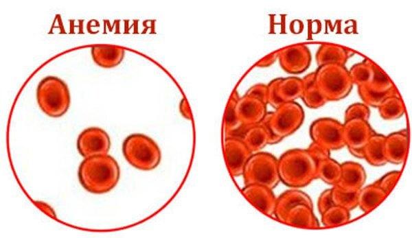 Гемолитическая анемия по анализу крови: что это такое, симптомы, лечение