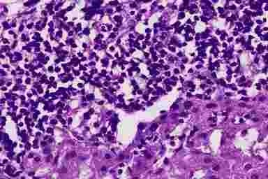 Билиарный цирроз печени: что это такое, симптомы, лечение