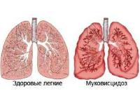 Основные симптомы муковисцидоза, причины заболевания, принципы диагностики, лечения и профилактики