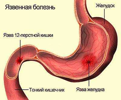 Из-за чего возникает острая ноющая боль в правом боку сверху?