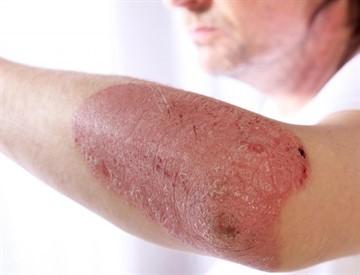 Как вылечить псориаз навсегда: существуют ли методы полного избавления от болезни