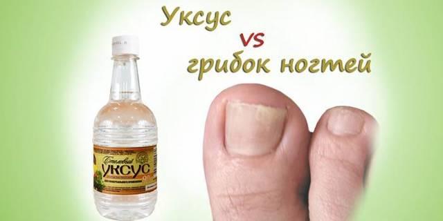 Лечение грибка ногтей на ногах народными средствами: как быстро избавиться от грибка