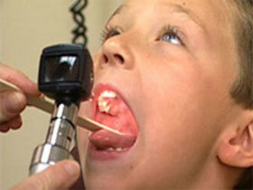 Хронический тонзиллит у взрослых: причины, формы течения, жалобы, диагностика, лечение и профилактика.