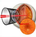 Диабетическая ретинопатия – лечение, операция на глазах при сахарном диабете