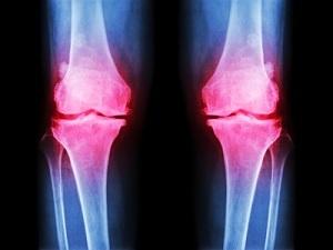 Эностоз бедренной кости - что это, как лечить эностоз бедренной кости