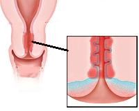 Эндоцервицит: что это такое, симптомы и лечение эндоцервицита шейки матки, свечи для лечения эндоцервицита
