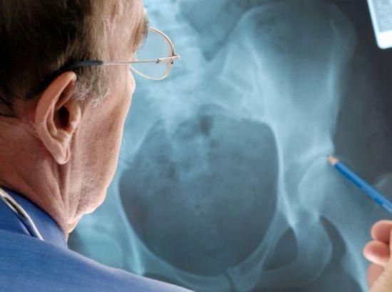Ломит кости и суставы при простуде, без температуры: причины, лечение