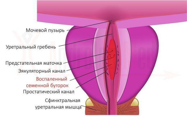 Боль во время семяизвержения у мужчин, болезненная эякуляция: причины, лечение