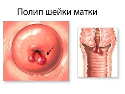 Полип шейки матки: причины возникновения, симптомы, лечение без операции, удаление
