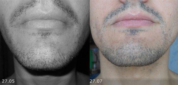 Как правильно пользоваться репейным маслом для бороды