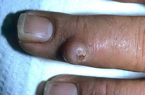 Доброкачественные новообразования на коже: родинки, невусы, папилломы, лимфангиомы, липомы, фибромы, бородавки и пр. – описание и риски перерождения.