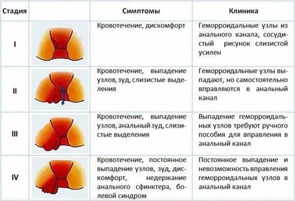 Геморрой: симптомы, лечение в домашних условиях и эффективные средства от геморроя