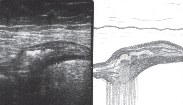 Дивертикулез кишечника: ирригоскопия и МРТ для определения дивертикулеза