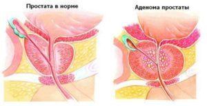 Действие препарата Сетегис при аденоме простаты