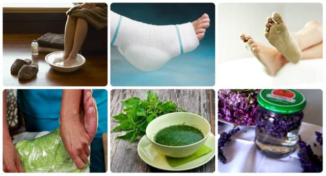Пяточная шпора: симптомы и лечение в домашних условиях, народные средства лечения шпоры