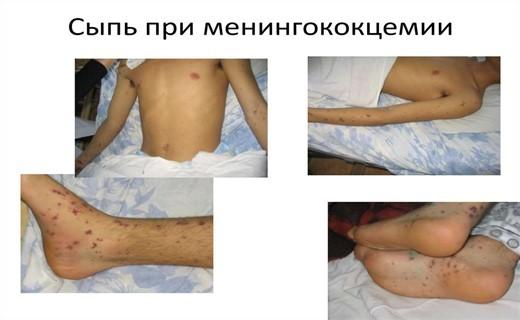 Менингококцемия— симптомы, осложнения, диагностика и лечение менингококцемии у детей.