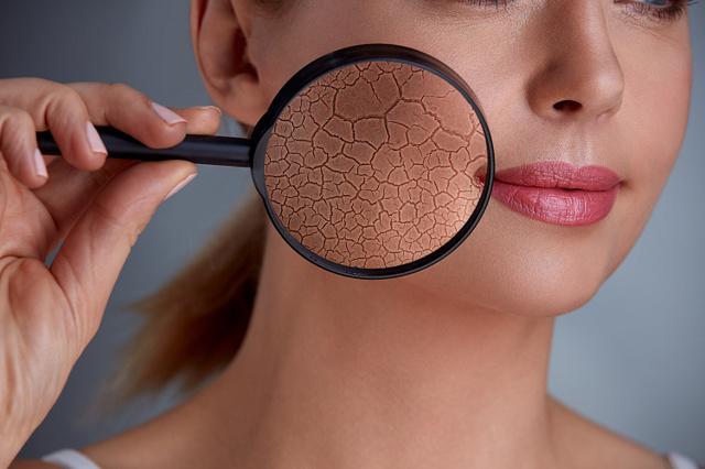 Сухая кожа лица: причина сухости кожи, лечение ксероза, выбор крема и масок при сухой коже
