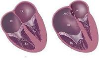 Аномалия Эбштейна, недостаточность трикуспидального клапана у плода, у взрослых: лечение