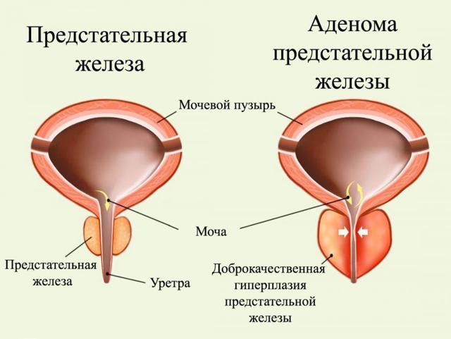 Затрудненное мочеиспускание у мужчин и женщин: причины, лечение
