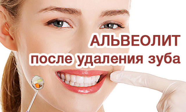 Что делать после удаления зуба мудрости: обработка лунки после удаления зуба мудрости