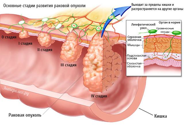 Рак кишечника: стадии, симптомы, течение заболевания