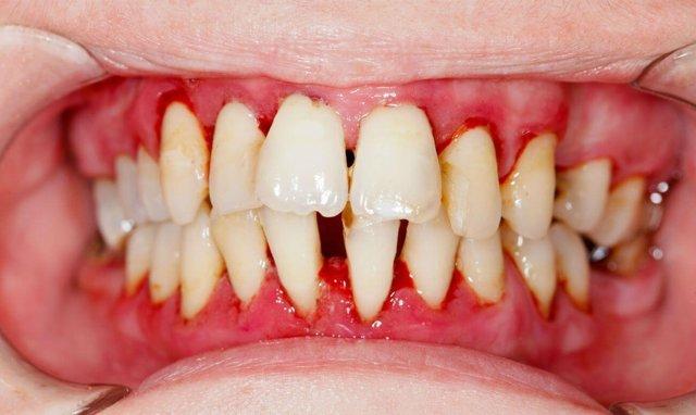 Отек десны возле зуба: как снять, лечение, чем полоскать в домашних условиях