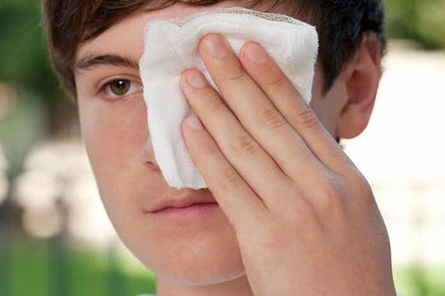 Ребенок ударился глазом: что делать при ушибе, травме глаза