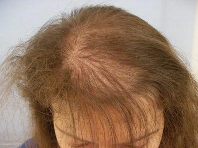 Андрогенная алопеция у женщин— лечение, симптомы, причины, фото