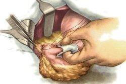 Спаечная болезнь брюшной полости: симптомы и лечение спаечной болезни