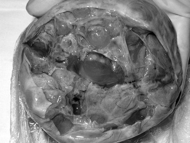 Мультифолликулярные яичники: причины, лечение, как забеременеть