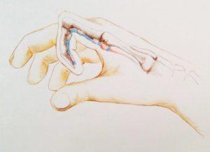 Стенозирующий лигаментит, блокировка большого пальца: лечение