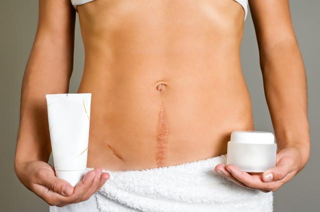 Гистерэктомия матки в гинекологии: что это такое, последствия удаления матки