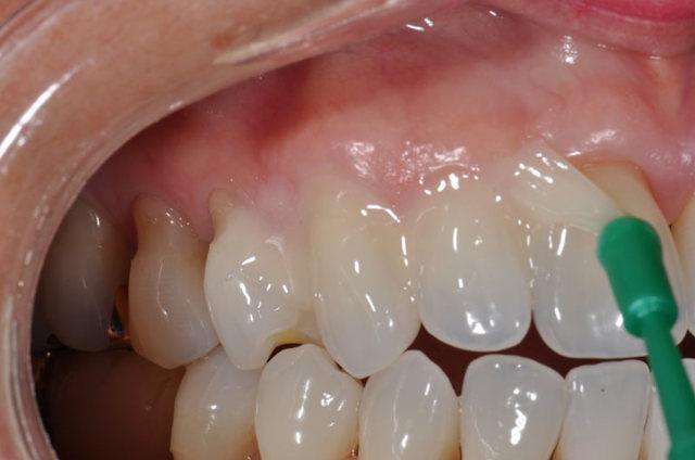 Повышенная стираемость зубов: что делать, если стирается эмаль зубов