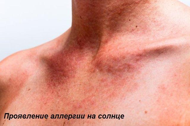 Почему появляются красные зудящие пятна на теле?