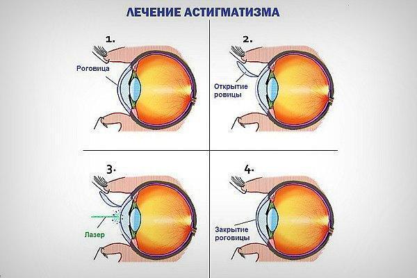 Гиперметропический астигматизм: причины, диагностика и лечение дальнозоркого астигматизма