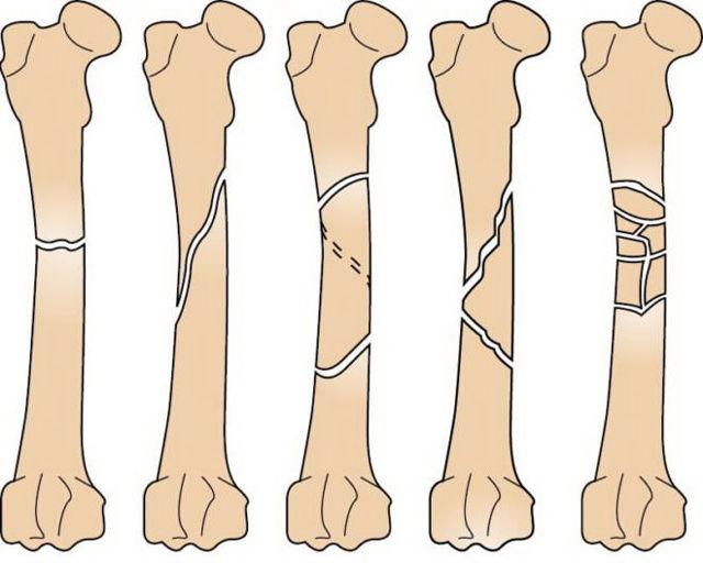Оскольчатый перелом бедренной кости со смещением: период восстановления после операции