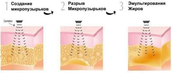 Безоперационная липосакция: кавитация, лазерная, водоструйная, радиочастотная липосакция