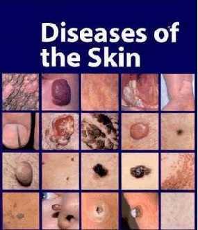 Колликвативный туберкулез кожи, скрофулодерма: жалобы, симптомы, лечение