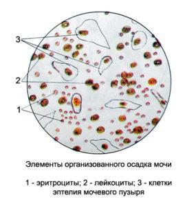 Анализ мочи по Нечипоренко у детей: норма, расшифровка, алгоритм, что показывает, как взять