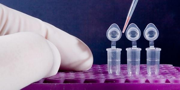 Анализ крови на биохимию: в каком случае проводится, расшифровка биохимического анализа крови, трактовка результатов