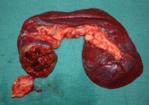 Туберкулез селезенки: симптомы, причины, узи признаки, лечение
