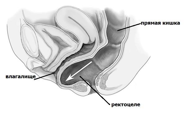 Ректоцеле: что это такое у женщин, симптомы и лечение ректоцеле без операции