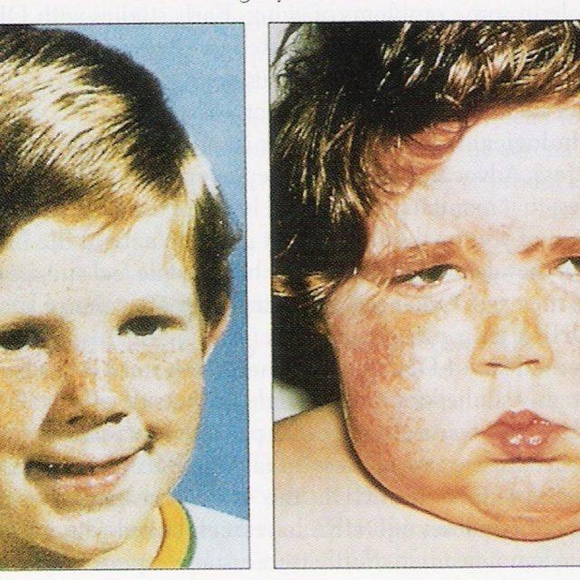 Симптомы и лечение кортикостеромы, злокачественная кортикостерома надпочечника